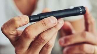 Diagnose Diabetes: Die häufigsten Fragen