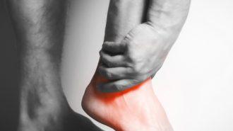 Charcot-Fuß: Die schwerste Komplikation bei Diabetes
